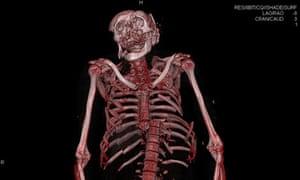 severed spine