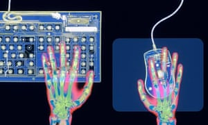 X-ray of Hands on Mouse and Keyboard