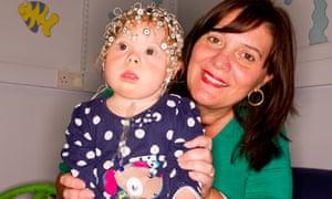 Down's girl wearing head sensor net to capture brain data