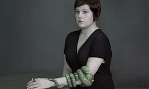 Cranfield, artificial limbs feature