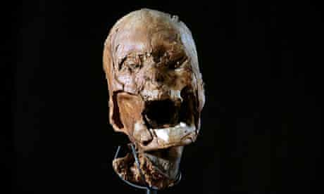 The mummified skull found in the attic of a retired tax collector