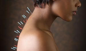 Why acupuncture is giving sceptics the needle | Science