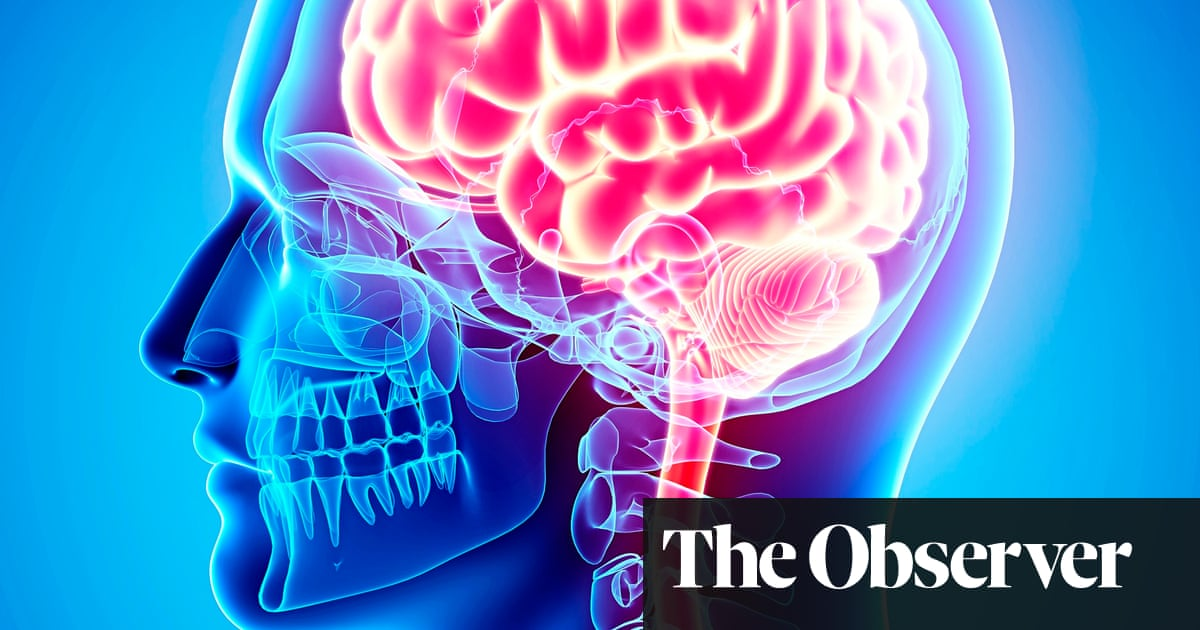 The Brain's Way of Healing by Norman Doidge review – a book