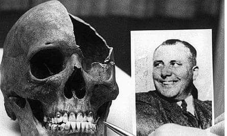 Martin Bormann skull