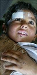 Iraqi boy, 6, injured by artillery fire near Basra